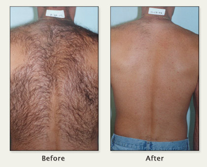 New Hot Trend Alert: Laser Hair Removal for Men