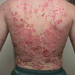 eczema skin care