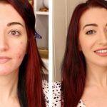 make-up tips for acne-prone skin