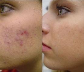 Laser Treatment for Acne and Acne Scars