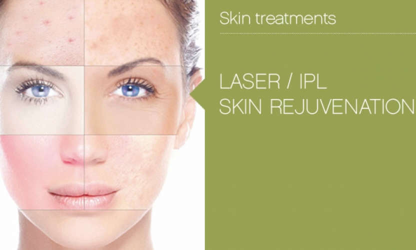 5 Things You Need To Know Before Getting IPL Photorejuvenation