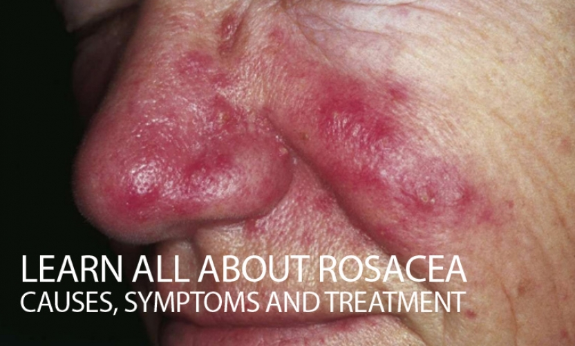 Learn all about Rosacea: Causes, Symptoms and Treatment