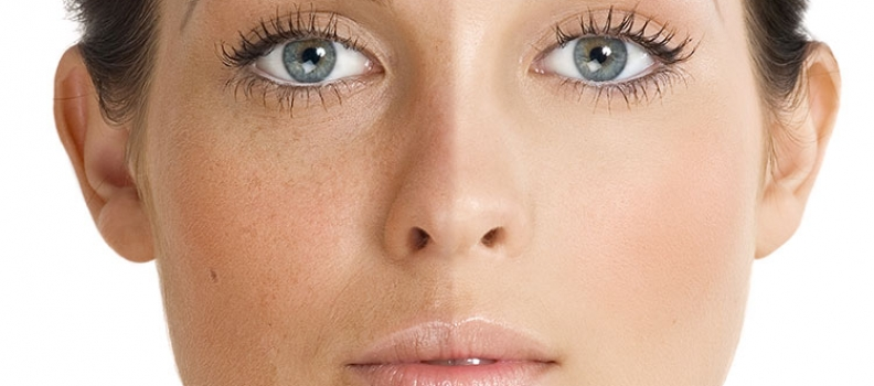 Skin Hyperpigmentation: Causes and Treatment