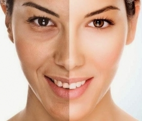 Top 3 Autumn Anti-Aging Procedures