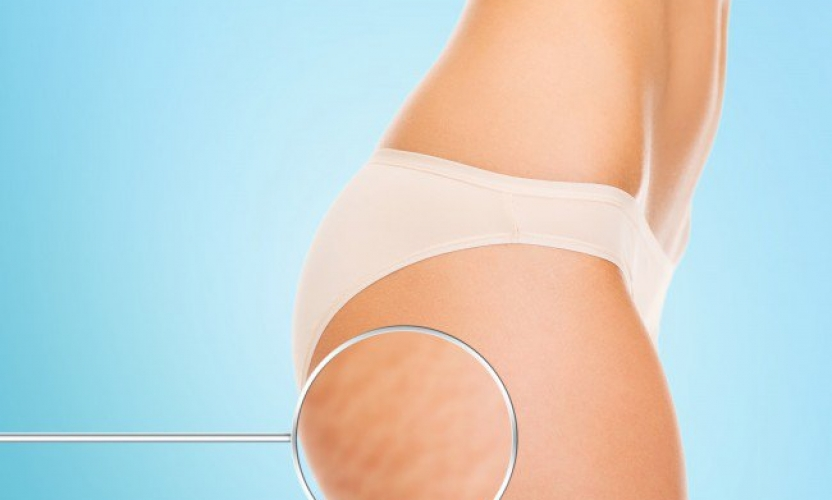 5 Tips To Fight Cellulite