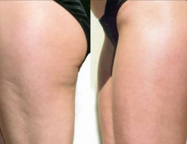 Information Is Power: Learn All about Cellulite so that you Can Beat It!