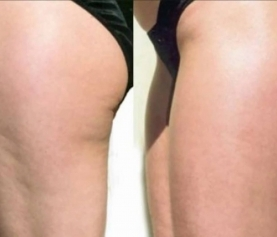 Cellulite Treatments: Learn All about Cellulite so that you Can Beat It!