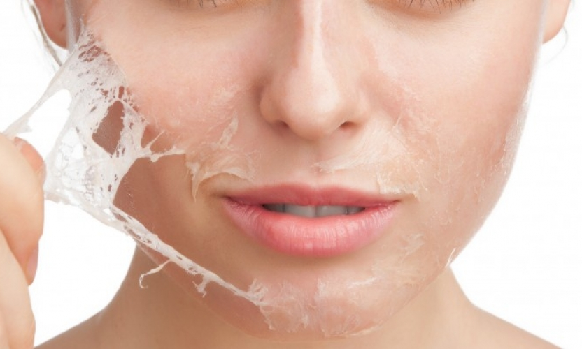 Chemical Peeling – Is It Right for You?