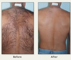 New Hot Trend Alert: Laser Hair Removal for Men