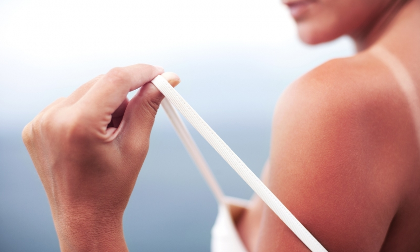 How to Treat Serious Sunburn