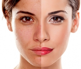 How to Correct Hyperpigmentation and Sun Damage