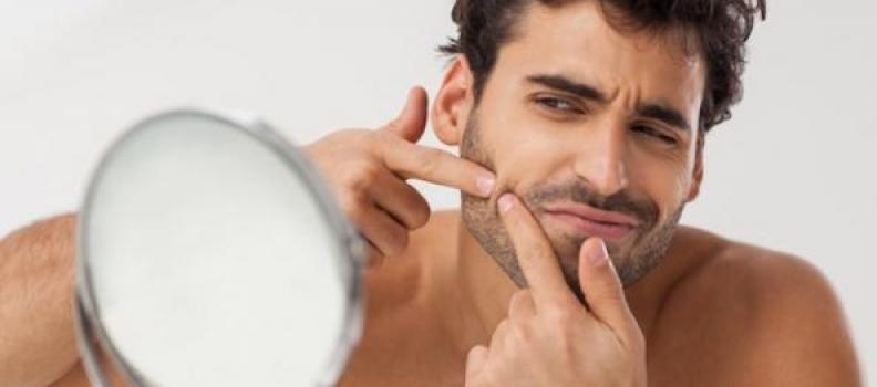 Fight Acne like a Man – Dedicated Treatments