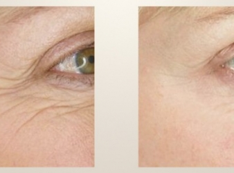 Is Laser Skin Tightening Right for You?
