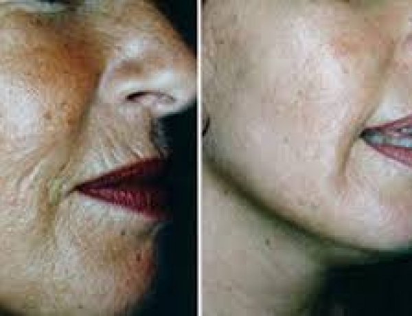 Microneedling with Dermaroller Is the Next Big Thing in Rejuvenation, but Is it Right for You?