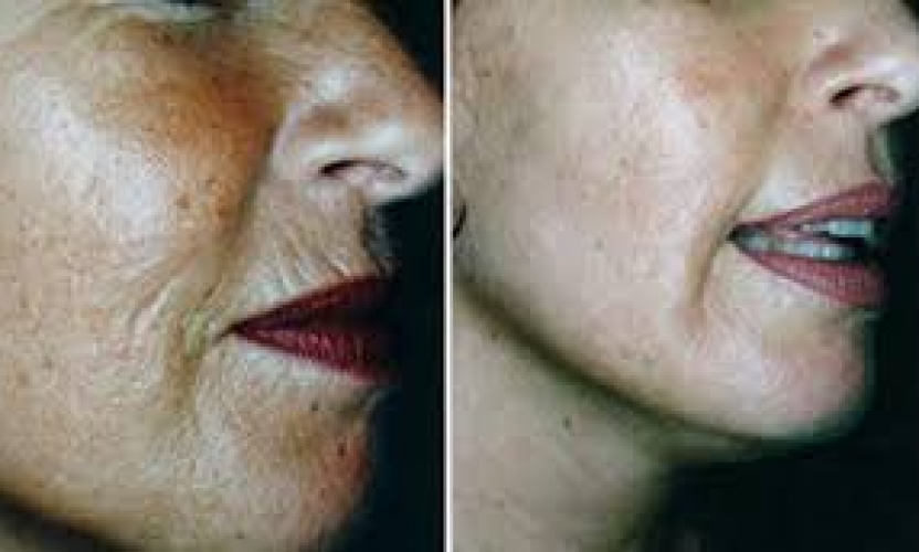 Microneedling with Dermaroller Is the Next Big Thing in Skin Rejuvenation, but Is it Right for You?