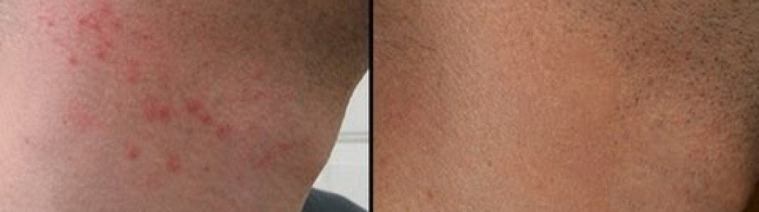 Men's Care: How to Prevent Shaving Razor Bumps