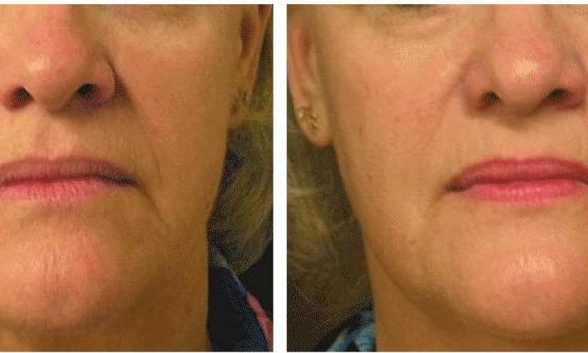 Zap 10 Years off your Face & Body with Laser Skin Tightening