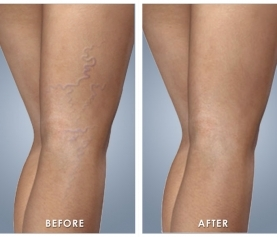 How To Treat Spider Veins – 4 Options You Can Start Implementing Right Now